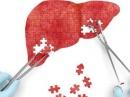 Что такое гепатит и почему он появляется?